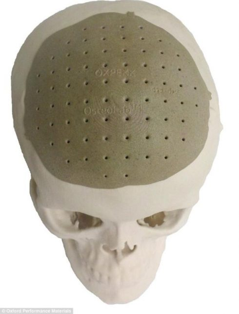oxfordskull_implant_610x801
